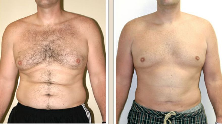 liposuction1 r2 c1