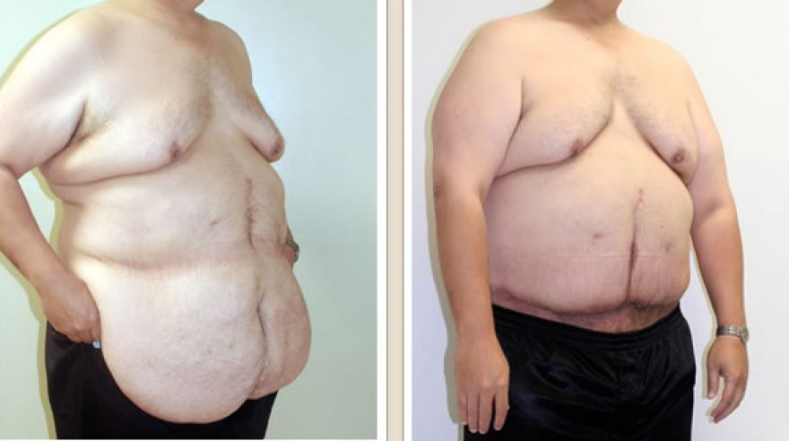 abdominoplasty4