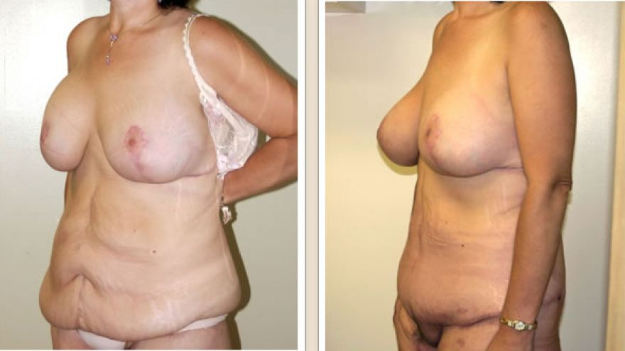abdominoplasty5