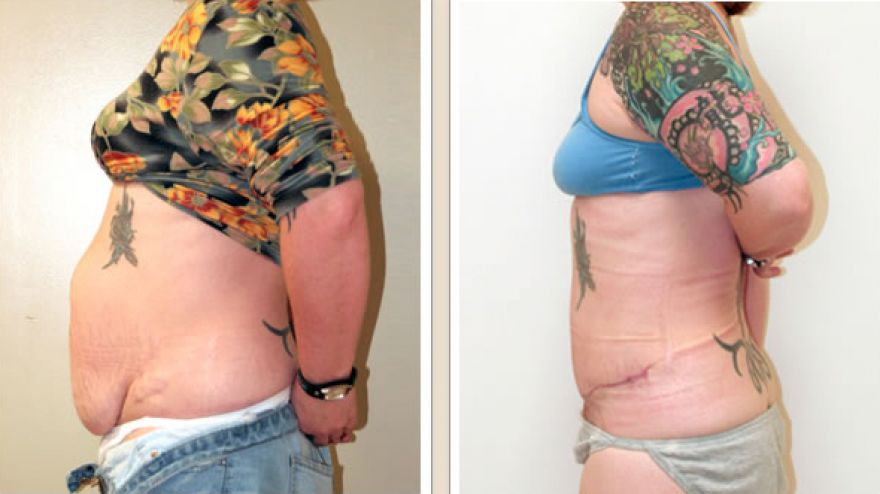 abdominoplasty1