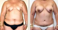 abdominoplasty3